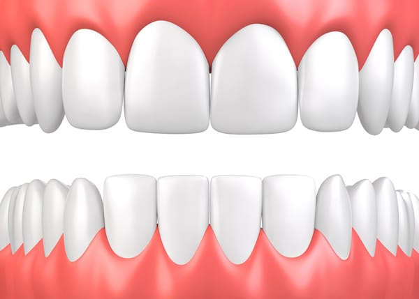 illustration of gums for periodontist page